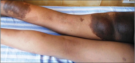 Figure 2: Hemangioma on the postero-lateral aspect of left thigh
