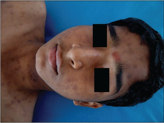 Figure 4: Hyperpigmented macules on the forehead, cheeks, neck and upper chest