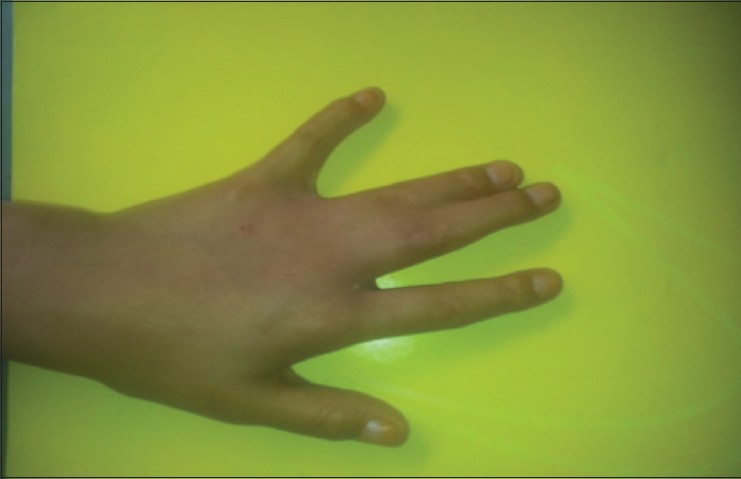 Figure 2: Syndactyly of 3rd and 4th fingers