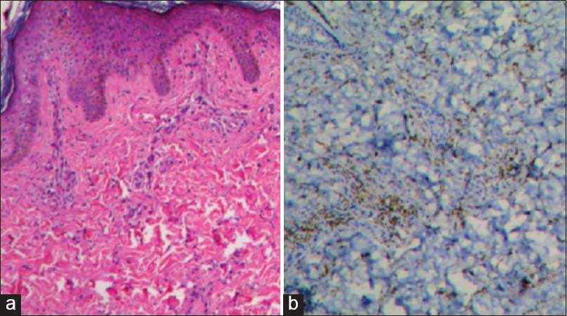Figure 2: (a) Histopathology showing thickened collagen bundles and a perivascular infiltrate of histiocytes (H and E, ×40). (b) Immunohistochemical study showing CD68+ perivascular histiocytic infiltrate in dermis