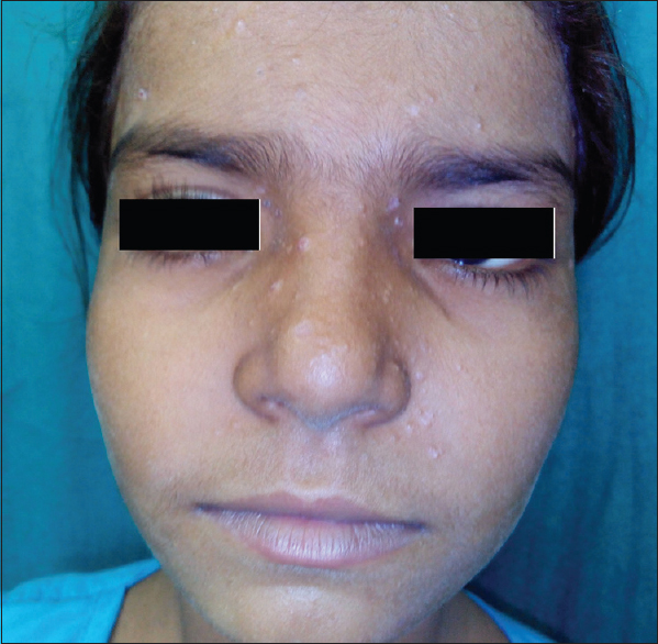 Figure 1: Trichoepithelioma over nose, forehead and perinasal area