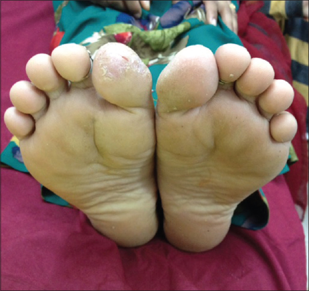 Plantar dermatitis in adults
