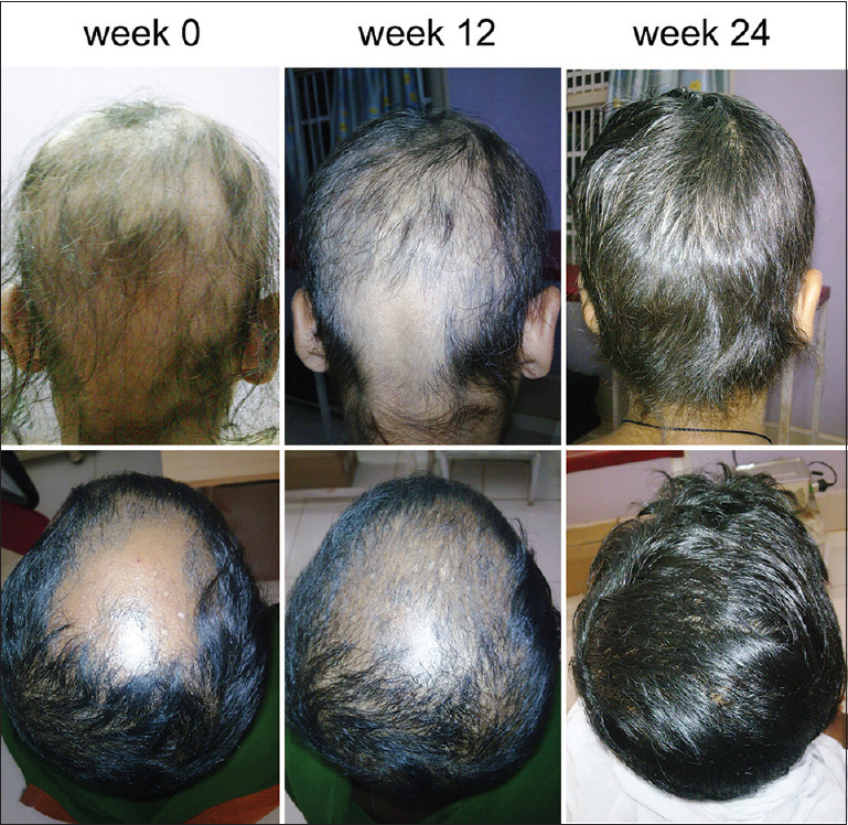 Figure 3: Good cosmetic response in extensive alopecia areata at week 24