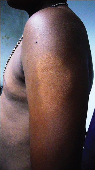 Figure 2: A large hypo pigmented patch over left arm