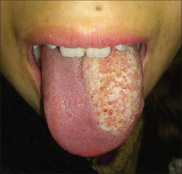 Figure 1: Well-defined mass seen on dorsal tongue studded with cystic vesicles