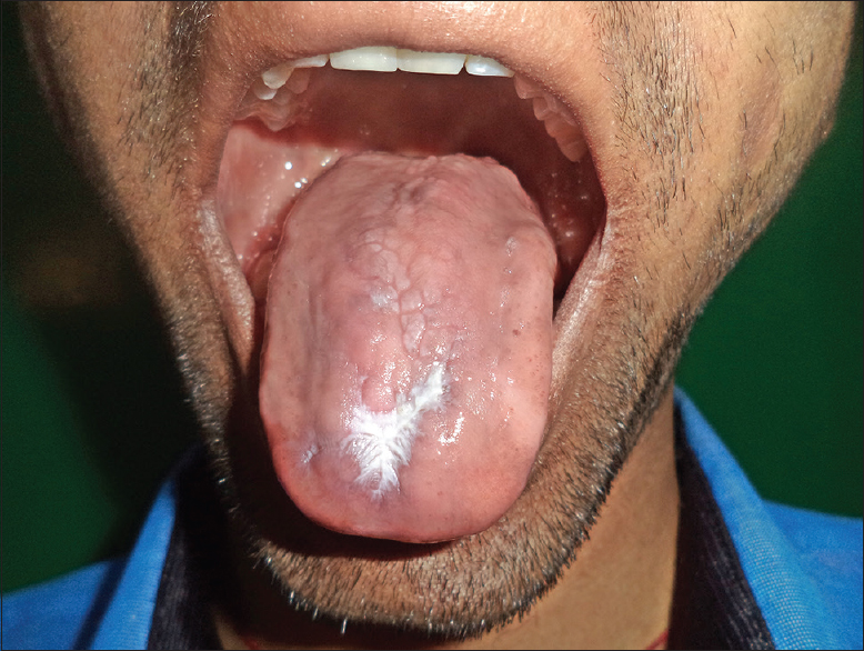 Figure 2: Oral leukokeratosis on the dorsal aspect of the tongue