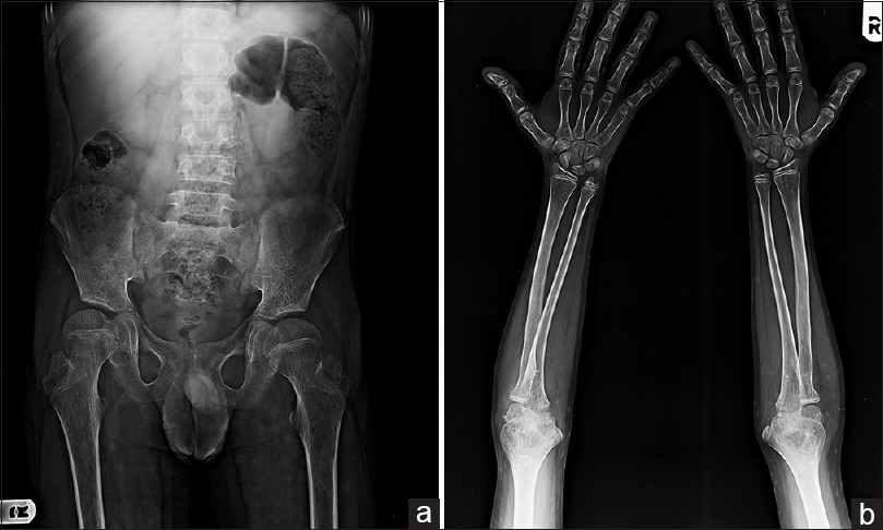 Figure 3: Patient 8 (a) femur, (b) radius and ulna showing intact epiphyseal plats