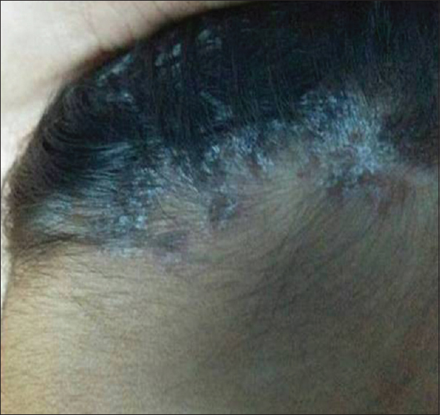 Figure 2: Demarcated papules and rounded plaques covered by silvery scale in scalp
