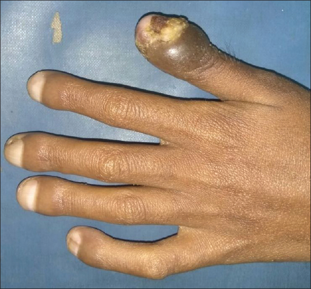 Figure 2: Showing grade 3 clubbing of fingers of left hand, also note the fungal periungual infiltration along with dystrophy of nail in one finger