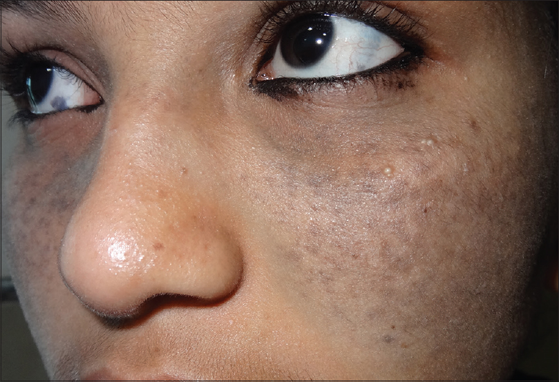 Figure 1: Diffuse bluish-brown macule over both cheeks and pigmentation of the sclerae