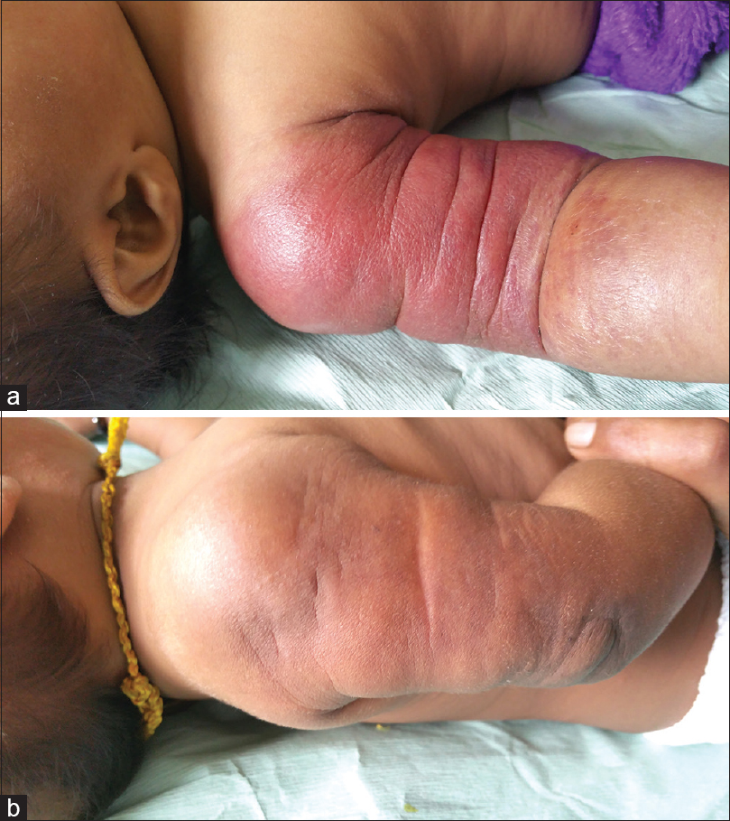Figure 1: (a) Erythematous indurated lesion over right arm, forearm. (b) Response to treatment with vincristine, prednisolone, and aspirin after 6 months