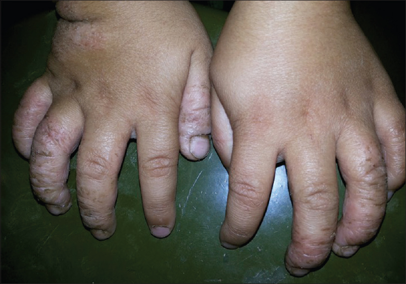Figure 1: Hand eczema in an infant