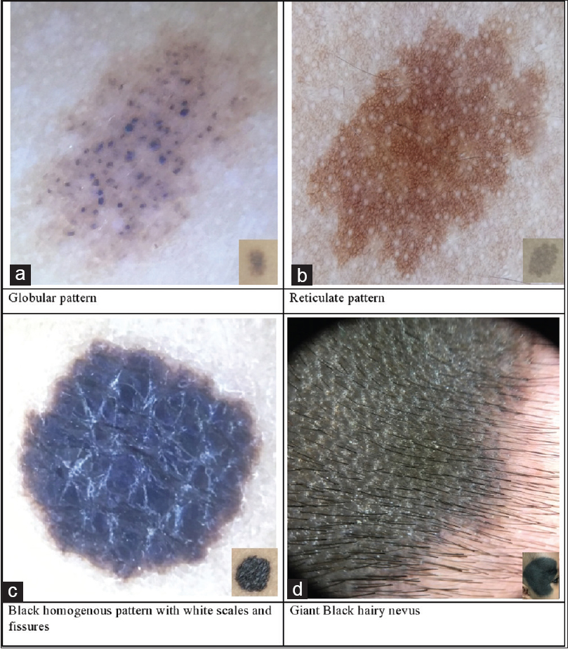 Figure 1: Congenital melanocytic nevi. (a) Globular pattern. (b) Reticulate pattern. (c) Black homogenous pattern with white scales and fissures. (d) Giant black hairy nevus