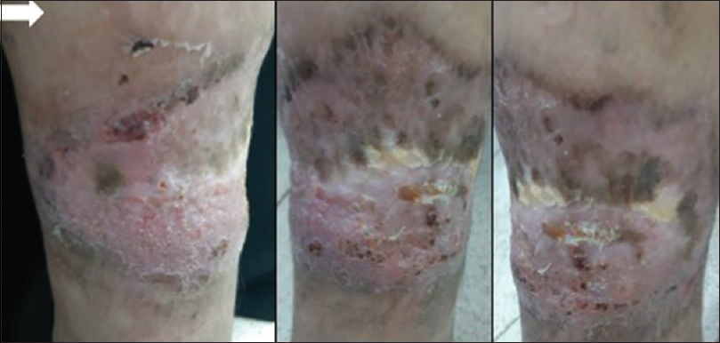 "Figure 4: Complete resolution of ulcer with cribriform scarring or ""cigarette paper-like"" scarring (white arrows) on the left leg after treatment"