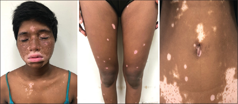 Figure 2: PASI 75 achieved at week 12 with repigmentation of vitiligo patches