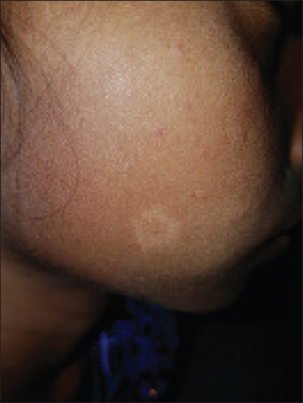 Figure 1: Well-defined anesthetic patch on the face – tuberculoid leprosy