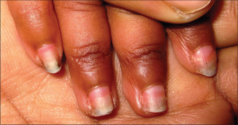 Figure 3: Chromonychia of fingers of some duration