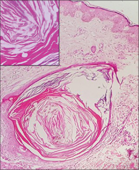 Figure 4: Histopathology (H and E stain) showing dermal cysts lined by stratified squamous epithelium and filled with laminated keratin and multiple vellus hair cyst (magnified image shown in the inset)